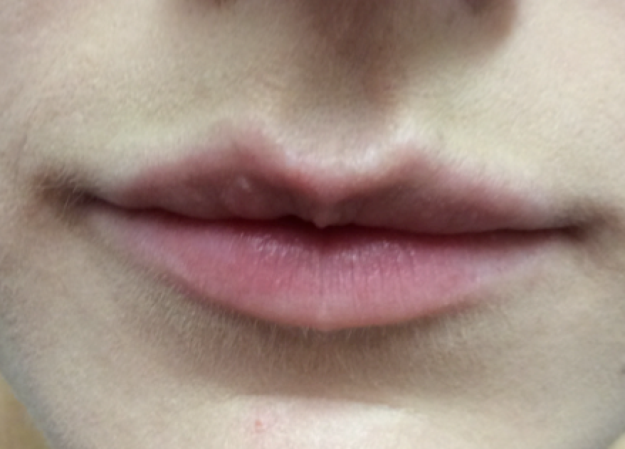 Before and after Lip images treated with Teosyal Kiss by Dr teri Johnson in Cheshire