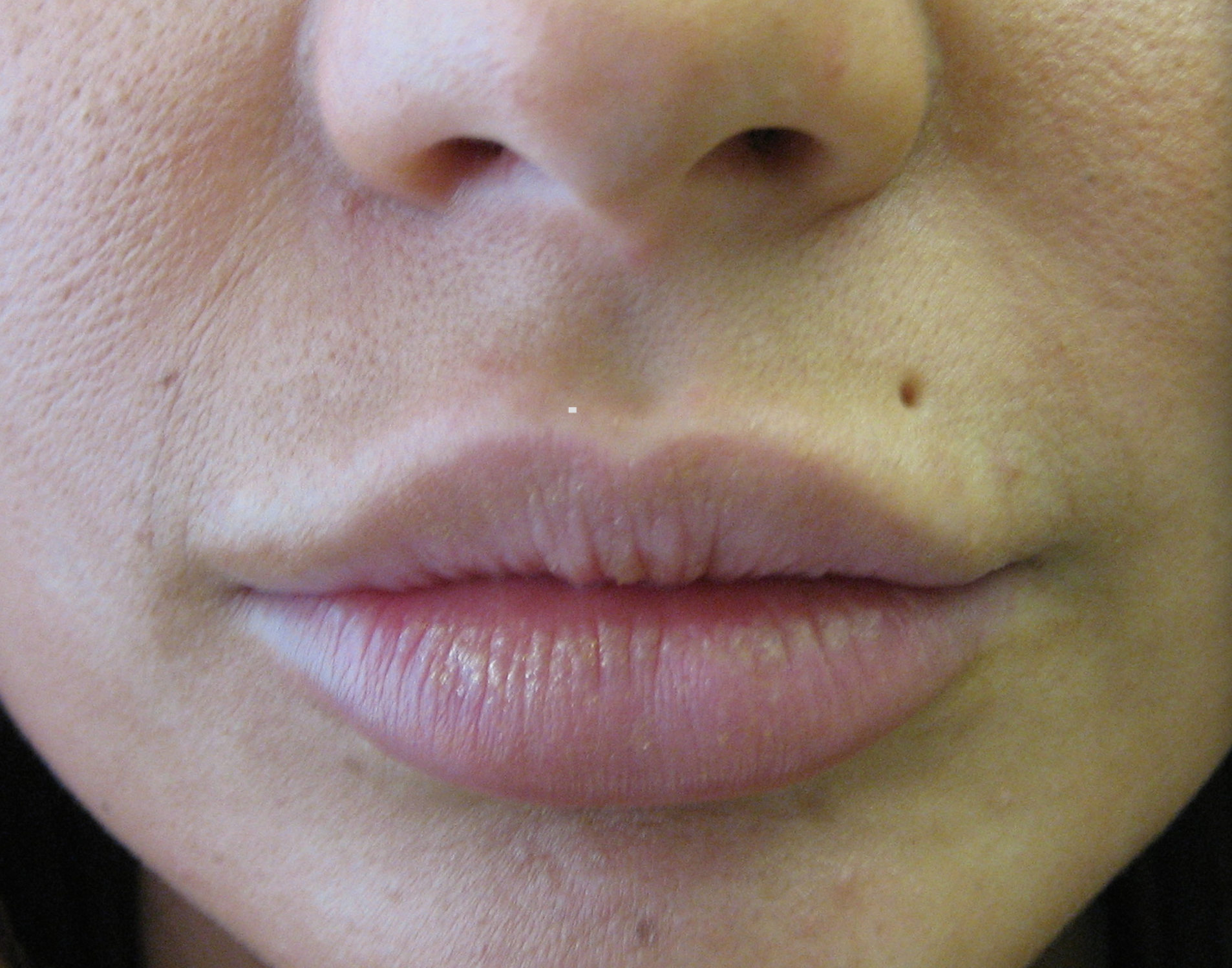 lip enhancement cheshire by Dr Teri