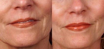 dermaroller for ageing skin