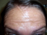 Forehead lines pre botox cheshire