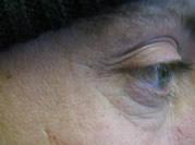 post male botox cheshre