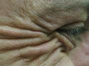 cheshire botox man
