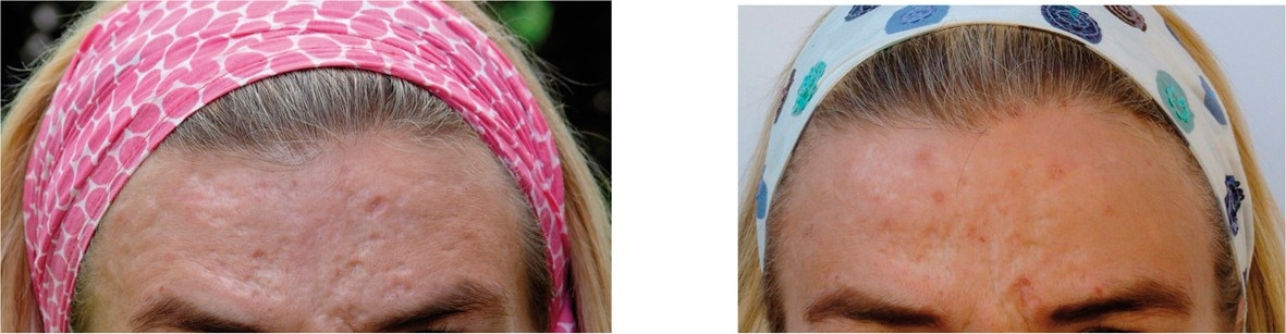 before and after acne scar dermaroller