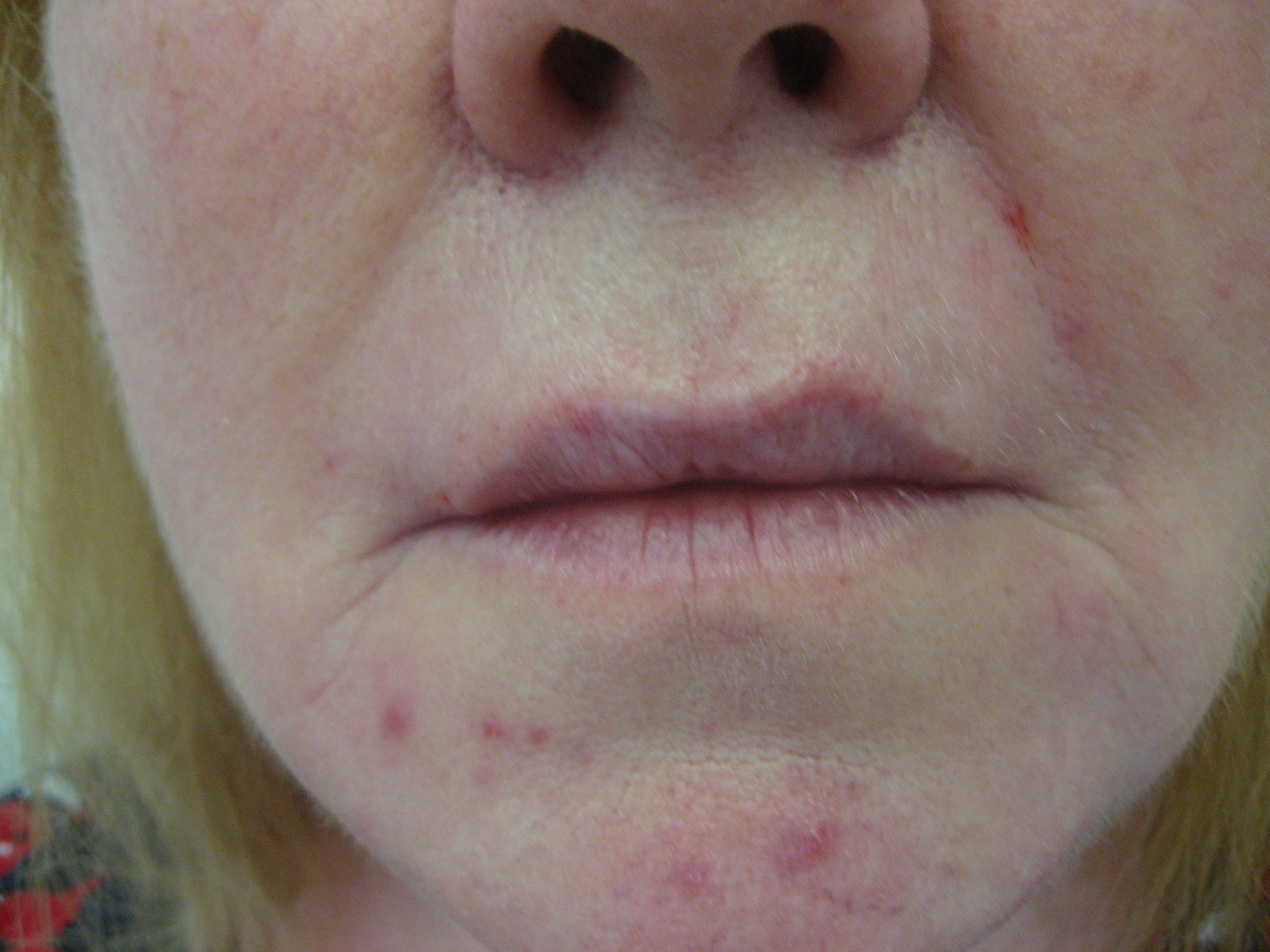 after juvederm volbella