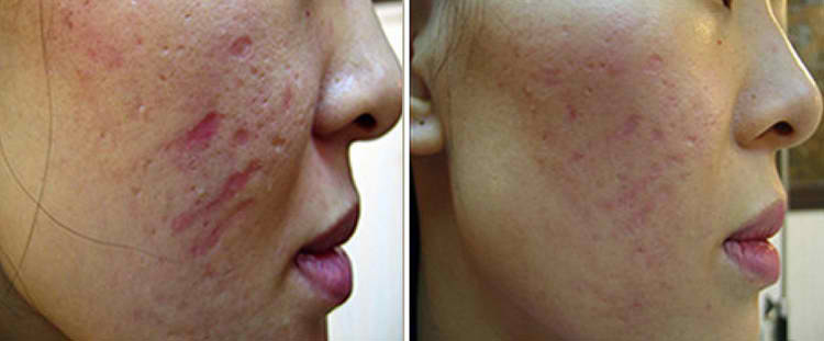Before and after images for dermapen microneedling
