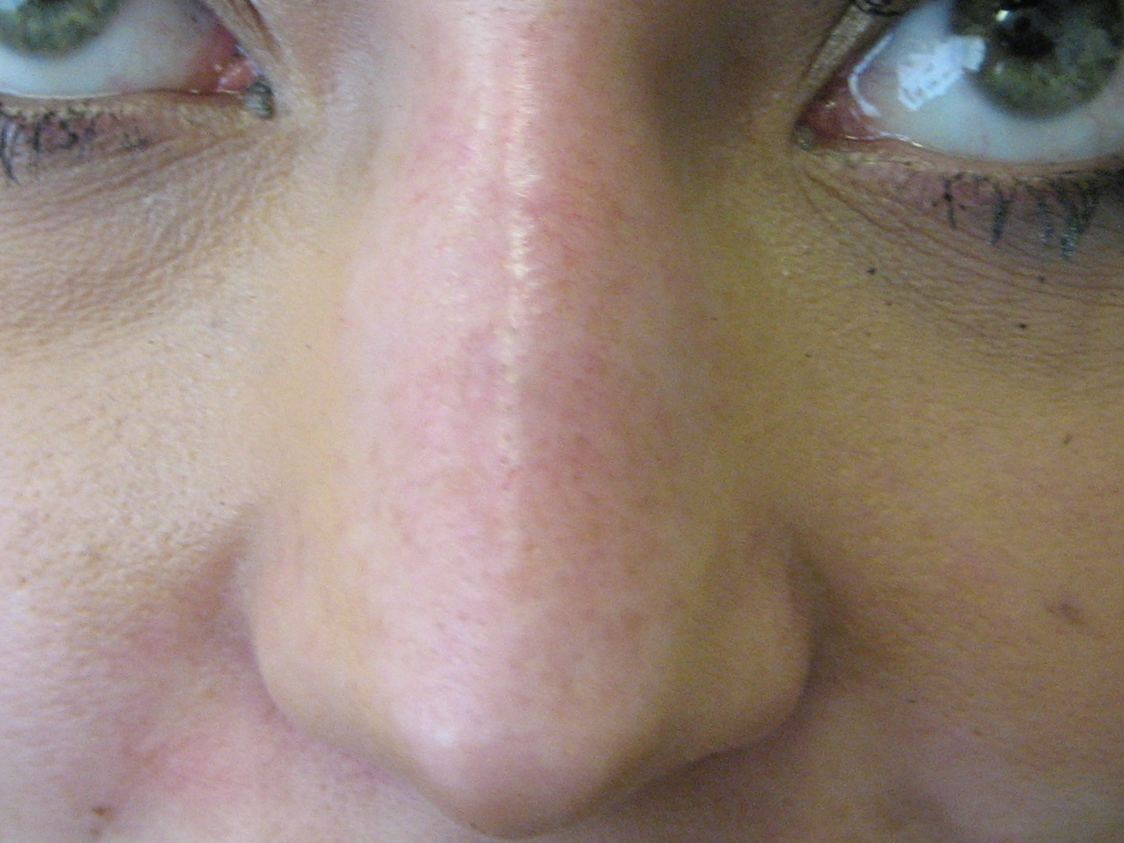 nose treatment with restylane