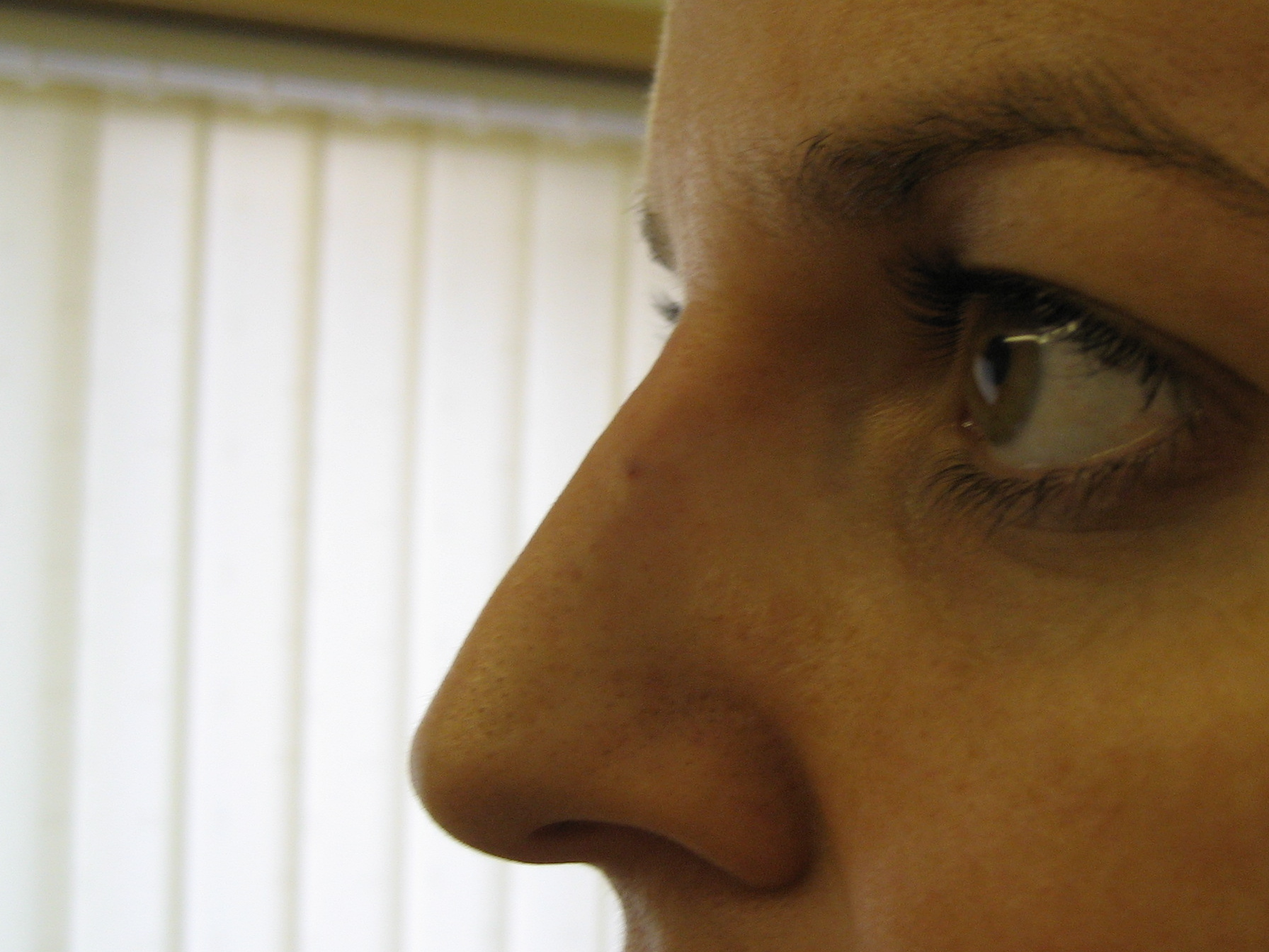 nose reshape