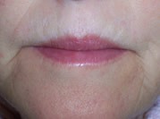 pre collagen filler cheshire