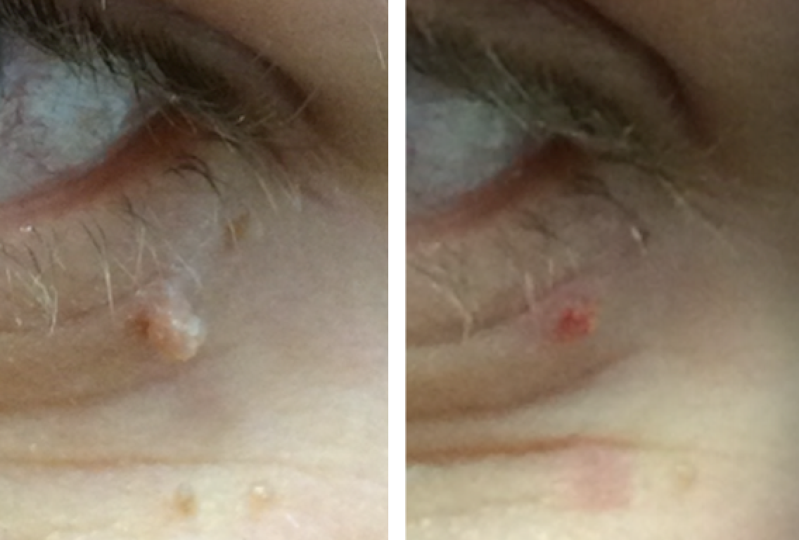 before and after skin tag removal Cheshire
