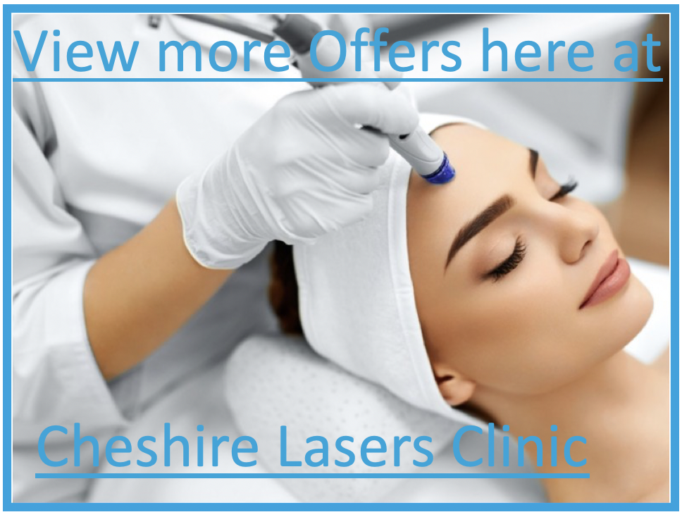 Cheshire Lasers offers