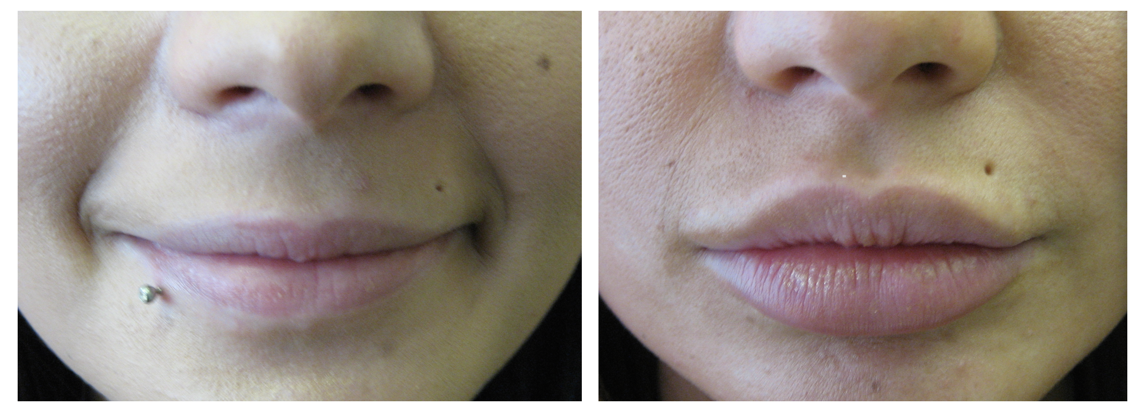 Lip enhancement Dr Teri Middlewich Cheshire