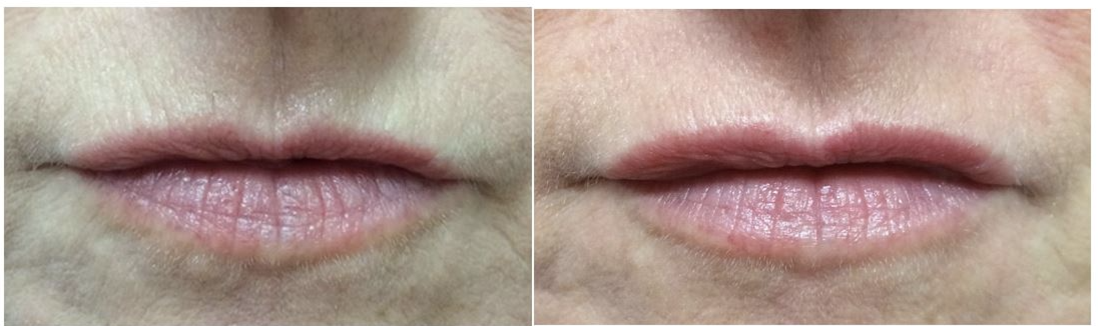 lip rejuvenation Dr Johnson middlewich