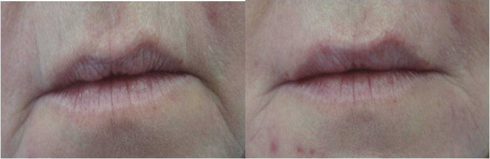 smokers line dermal filler Cheshire