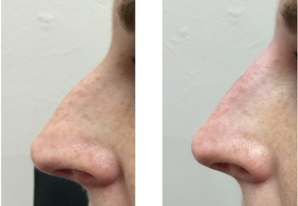 Nose reshaping correction dermal filler Cheshire