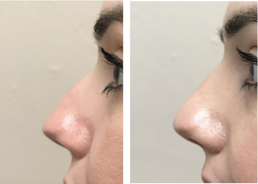 Dr Teri Cheshire nose correction dermal fillers