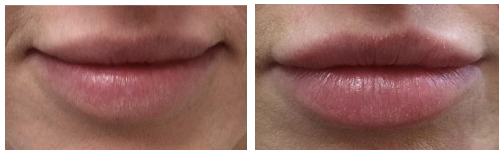 lip enhancement doctor Cheshire