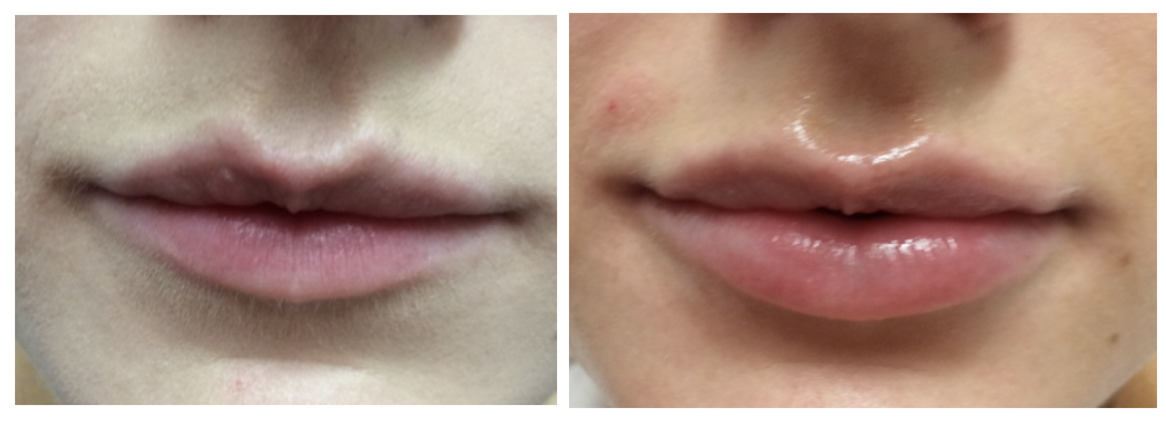 lip enhancement Cheshire doctor