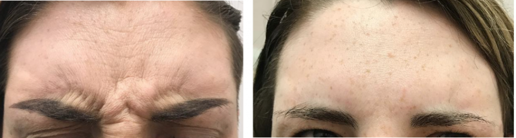 before and after Botox frown treatment Cheshire lasers
