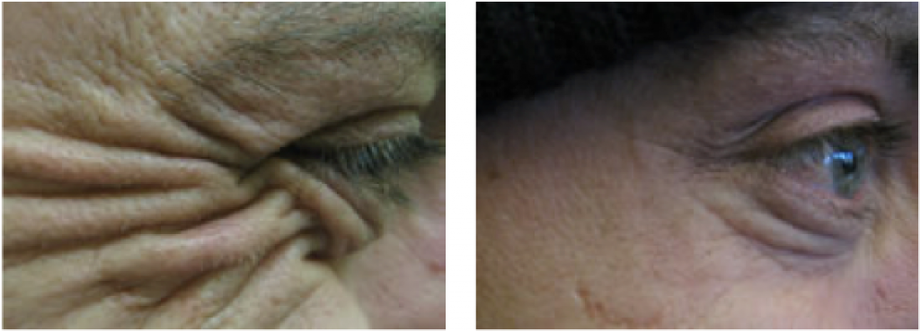 botox man crows feet at Cheshire Lasers