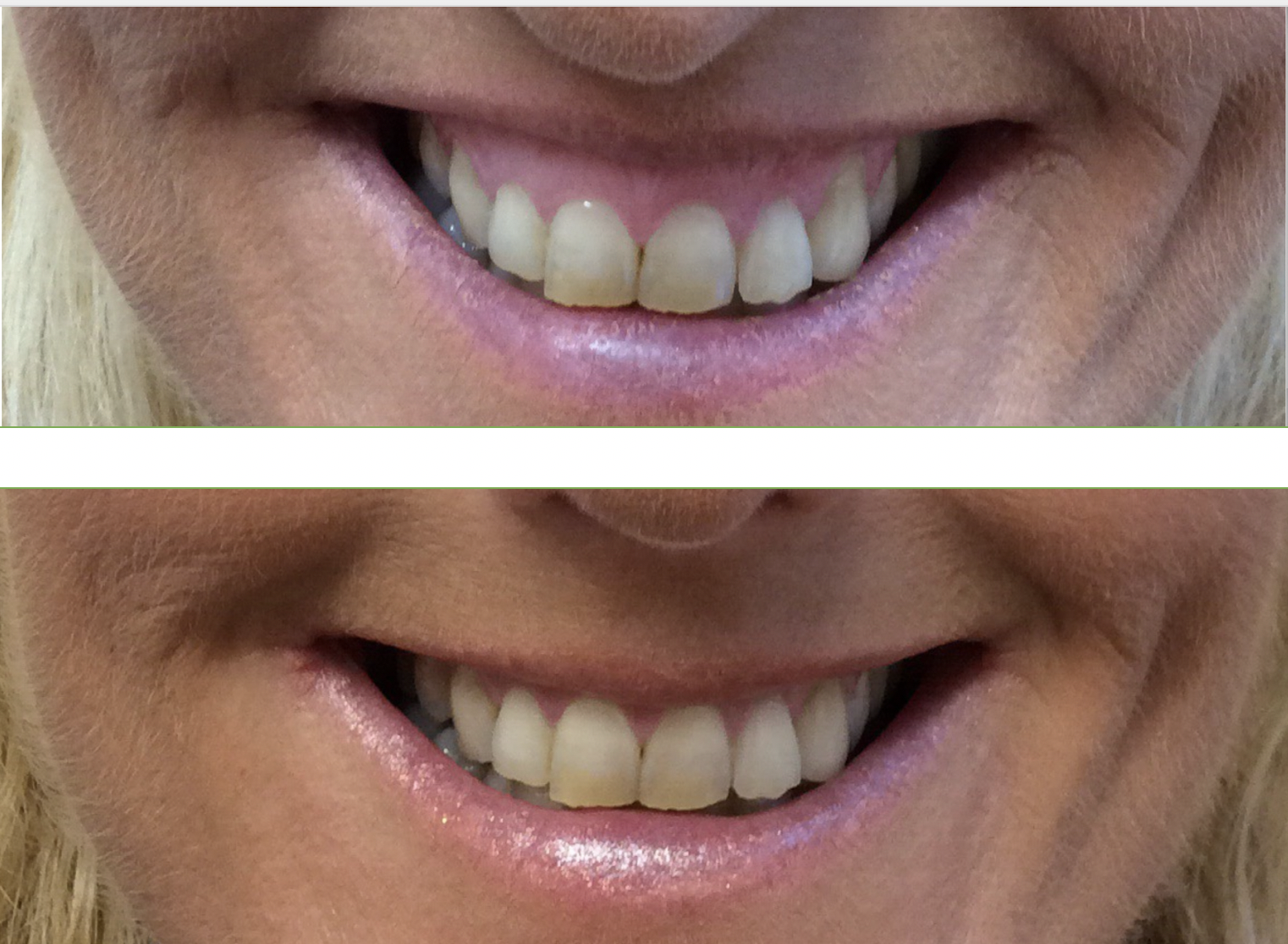 before and after botox treatment for gummy smile