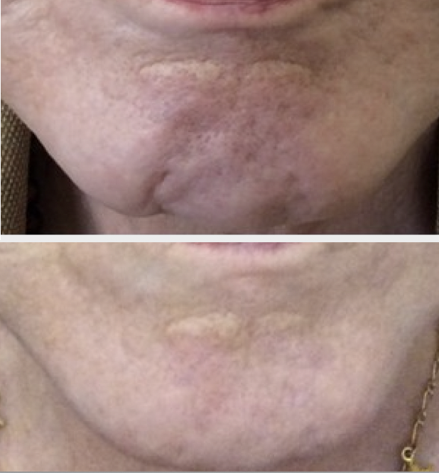 Botox chin dimple treatment