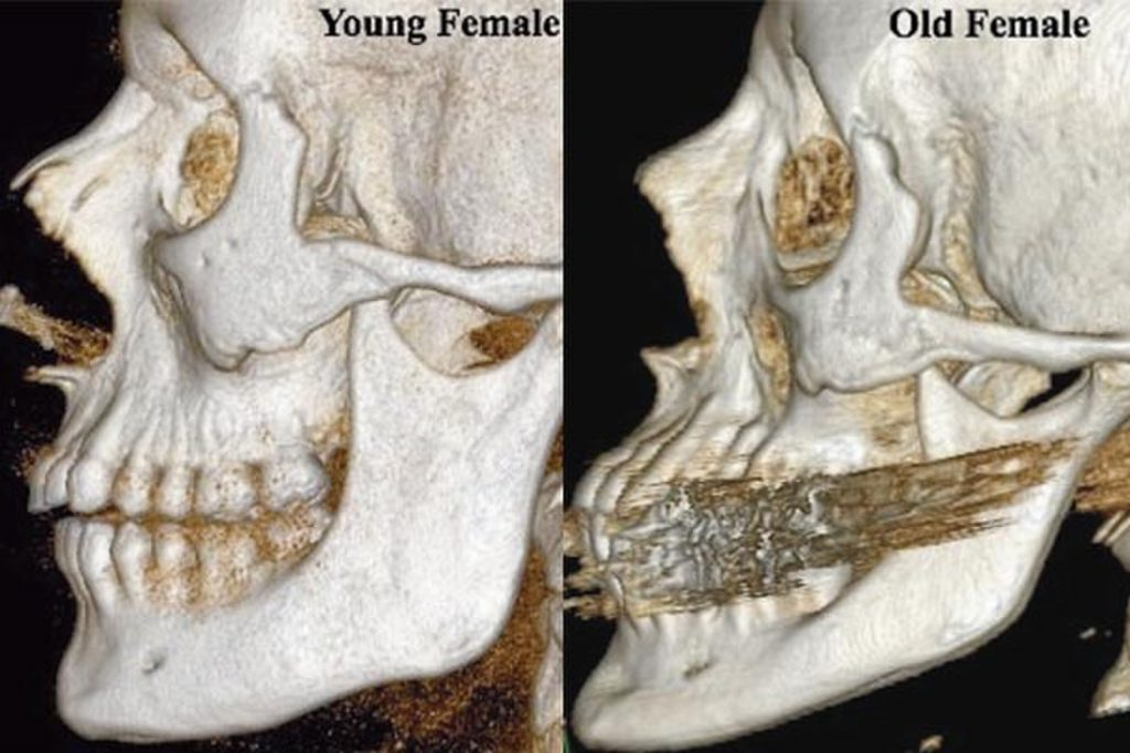bone changes with age in a female
