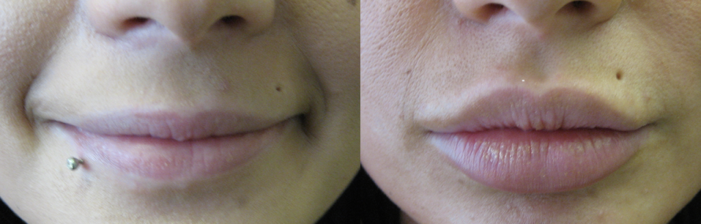 before and after lip enhancement treatment